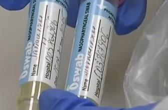 Анализы и тесты на коронавирус COVID-19
