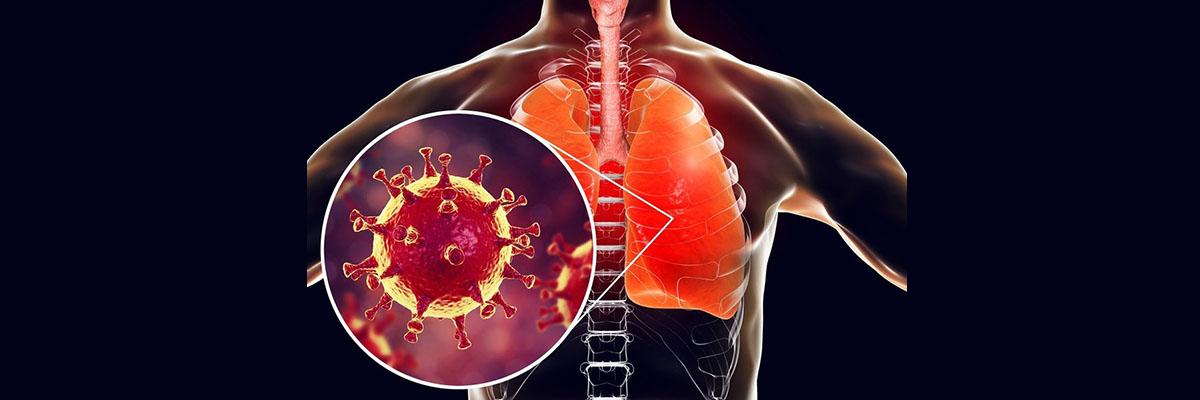 Симптомы коронавируса COVID-19