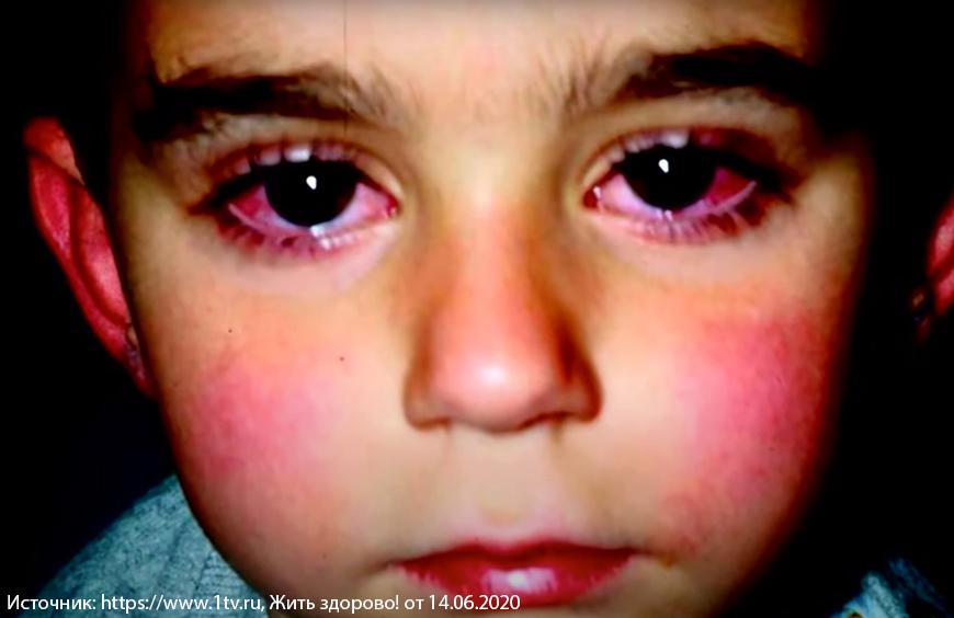 Симптомы и признаки коронавируса у детей